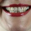 口臭対策が簡単にできる方法3選(歯磨きが基本です)