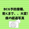 BCG予防接種、 乾くまで、、大変! 痕の経過写真