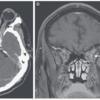 眼痛と視力障害を生じた血液疾患の症例 神経内科の論文学習