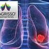 オシメルチニブ 非小細胞肺がん
