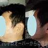 2016/1/15 273日目 10キロ以上痩せた夫くんの変化