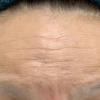 ボトックス注射で額のシワ治療