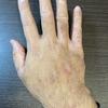 【アトピー症状の記録1】2021.05.20(木) 右手