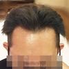 髪をアッシュカラーにしちゃった☆彡【8か月目】ミノキシジルとプロペシア薬の経過 AGAハゲ・頭皮画像