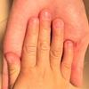 自分で爪をはがす癖がある4歳次男。