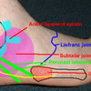 "Print ""Symptoms Associated With Side Of Foot Pain"""