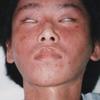 アトピー性皮膚炎の改善写真(大学生男子)