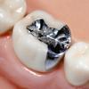 銀歯がしみて金属アレルギーになった友人!歯を総取り換えでローン地獄!