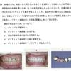 114回 歯冠補綴学振り返り ポンテック編3