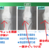 人工膝関節置換術 痛みが強くて、散歩に行くのがおっくうであれば手術した方がよい…
