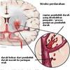 Obat Pasca Stroke Iskemik