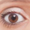 目が腫れた! 対処方法