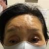 眼瞼下垂症例