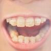 子供の歯科矯正part2矯正の目的は他にもあった?