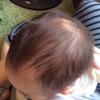 息子がハゲた!新生児生理的脱毛