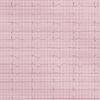 症例17:ランニング中に動悸を自覚した47歳男性(Ann Emerg Med. 2020 Nov;76(5):583-585.)