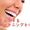 歯を白くするホームホワイトニングとは?