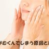 むくみ解消で顔痩せ!短期間の即効ダイエット方法ですっきり小顔へ