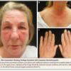 □ケース流し読み:57才女性,1年間続く掻痒を伴う顔面発疹と2週間前からの進行性の咳嗽と呼吸苦