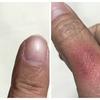 指が赤くなって痛い