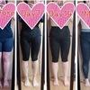 太ももの脂肪吸引【術後1ヶ月】比較写真あり