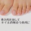 【美足爪への道】巻き爪を市販のアイテムでセルフケア