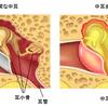小児科医の解説する急性中耳炎
