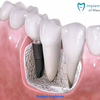 Beautify Your Teeth with the Best Cosmetic Dentist in San Diego