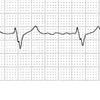 その心房細動、そのままにしていて本当に良いのでしょか?? もしかしたら治るかもしれませんよ。