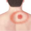 Borrelia burgdorferi (Lyme病)について