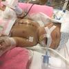 突然の出産、診断名変更、手術