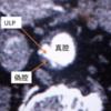 大動脈解離ULP型解離の定義と意義