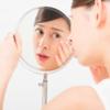 化粧水を変えたら顔の肌荒れと赤みが改善した