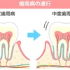 アルツハイマー型認知症は歯周病が関係?~歯周病からの全身疾患について~