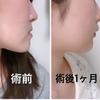 顎変形症手術 顔の変化(写真比較)