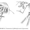 小児と青年に対する原発性女性化乳房に対する外科手術 PSI