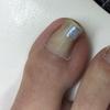 厄介な痛い巻爪に朗報です。