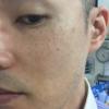 シミ・ソバカス隠し(半顔5分程度)