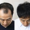 生え際の薄毛には自毛植毛が最も効果的な治療である理由