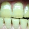 歯が白くなる歯磨きを使ってみる アパガード プレミオ プレミアムタイプ  6日目