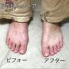 『足の指先ケア』の大切さ