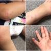 手足口病が大流行中!症状や対処法・予防法まとめ