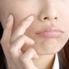 【体験談】ビタミンBとビタミンCで口唇ヘルペスが再発しなくなったお話