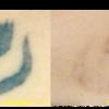 圧倒的症例数!ピコレーザー(エンライトン)でタトゥー除去をしています。3回照射後の経過