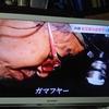 「ガマフヤー」具志堅隆松さんの知らなかった発掘(沖縄戦)