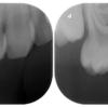 乳歯の虫歯治療②