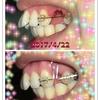 前歯の角度の変化《6回目の調整》