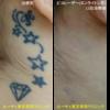 耳裏の星型タトゥーが薄くなり、ほとんどわからなくなりました。