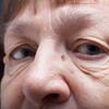 目のたるみを美容外科に頼らずに解消する!自分でも治せるの?
