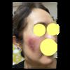 美肌への道㉒ 炎症その後